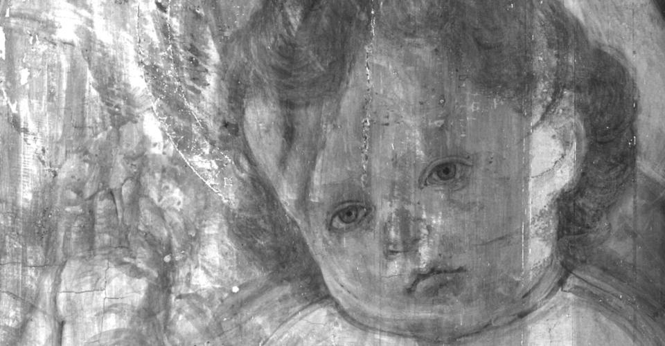 05 – braccio e viso bambino